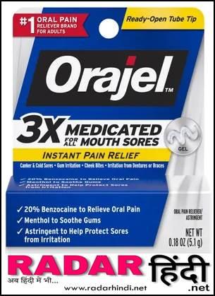 मुंह के छाले की अंग्रेजी दवा का नाम